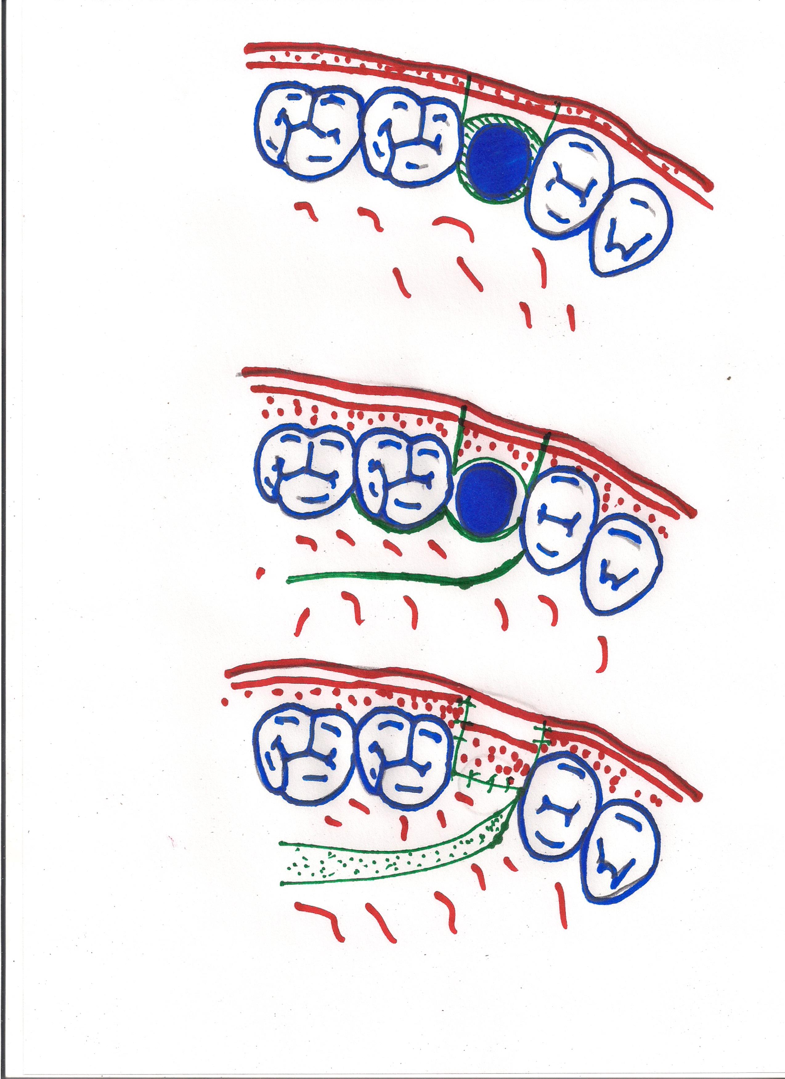 Intervention pour le fermeture d'une communication bucco-sinusienne.