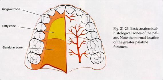 Zone de prélèvement du greffon entre les trous palatin antérieur et postérieur (unige.ch)