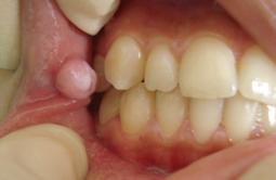 La diapneusie tumeur b nigne buccale conseil dentaire for Bouton interieur levre bouche