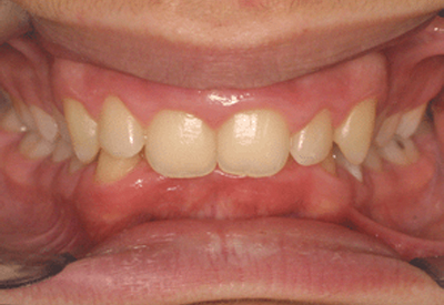 Supraclusie incisive(daotrong-ortho8.fr)