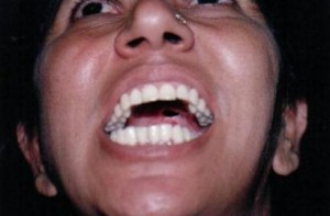 Luxation unilatérale de la mandibule avec trismus (greemsanctuary56.blogspot.com
