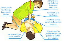 position des mains et du corps pour massage cardiaque externe (Protection Civile de Paris