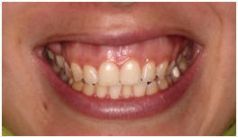 SOURIRE GINGIVAL AVANT INTERVENTION