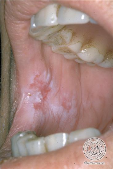 Les granulations ou grains de fordyce conseil dentaire for Bouton bouche interieur