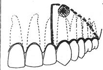 Tracés d'incision pour résection apicale.