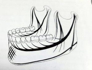 Les travées osseuses maxillaires et mandibulaires d'après Izard