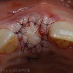 Greffe de gencive ferment l'alvéole sur un comblement osseux et une membrane résorbable. (id-eweblog)