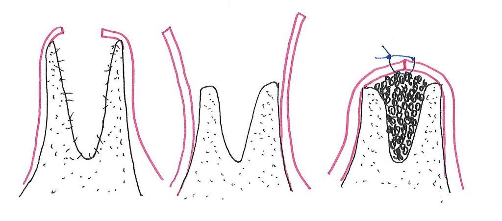 Extraxtion chirurgicale avec pose d'une époge de collagène et sutures.