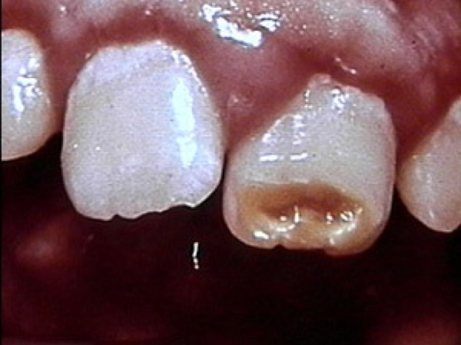 Dent de tunner (qizlet.com).