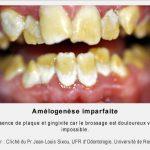 Amélogénèse imparfaite de la deuxième dentition (universitederennes1)