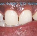 Malformations Dentaires : 12 naine et agénésie 22