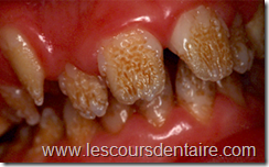 Malformations Dentaires