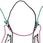 Rétraction osseuse et poches parodontales: bourrages alimentaires.