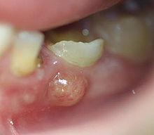 Fistule bourgeonante sur dent de lait.