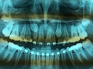 Contrôle en 2002.Clinique et panoramique dentaire strictement normal.
