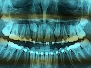Novembre 2002 agrandi. Parodonte normal. Endodonte normal..