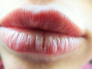 Lèvres-gercées (santé total)